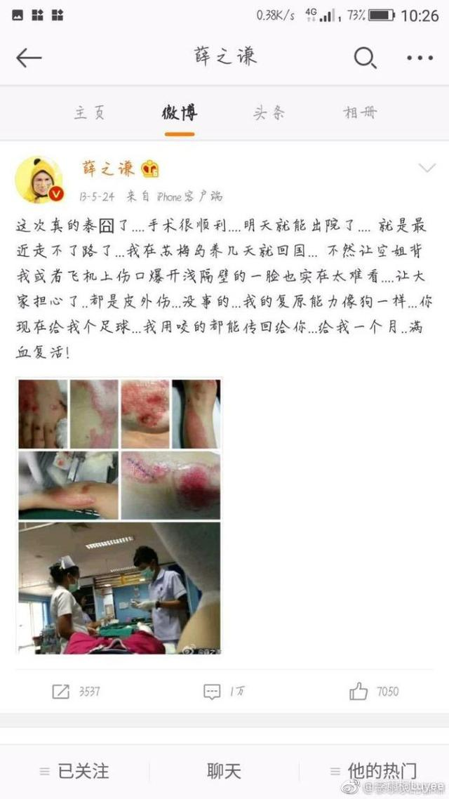 薛之谦泰国车祸受重伤的竟是李雨桐!被拍伤疤照卖惨,还不许外传