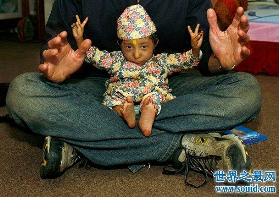 世界上最矮的人是钱德拉·巴哈杜尔,身高只有
