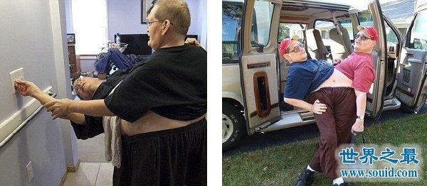 世界上最长寿的连体双胞胎,腰部相连面部相对