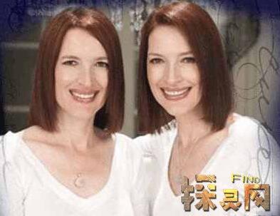 世界上最奇怪的双胞胎,令人难以置信!