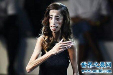 世界最丑的女人是谁 是芙蓉姐姐吗