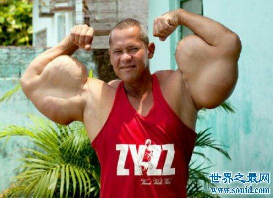 世界史上最强肌肉男  肌肉比头都要大靠着注射填充剂维持