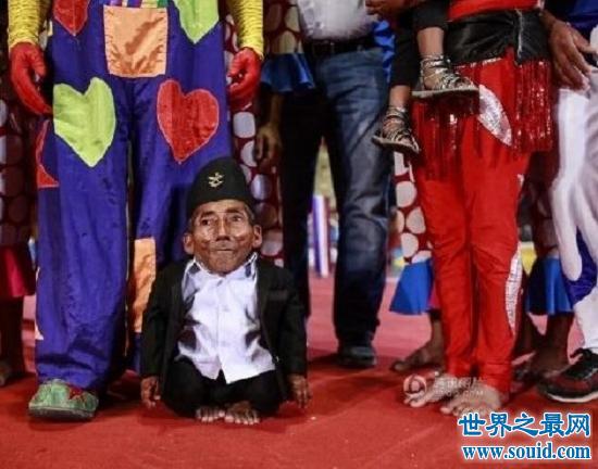 世界最矮的人(54.6cm),72岁终迎人生转折点