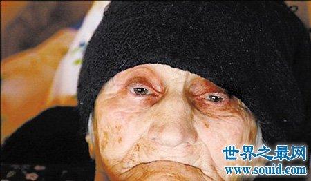世界最长寿的人你知道他活了多久吗 现在还健在吗