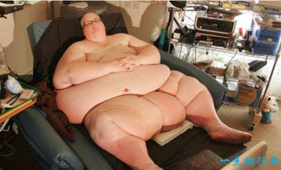 世界上最胖的人 因减掉500斤肉导致皮肤下垂严重