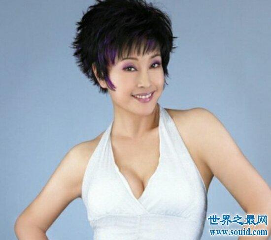 刘晓庆整容,现在她的面部僵硬,但是只承认微整过